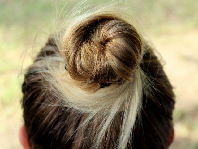 Greffe de cheveux facilement